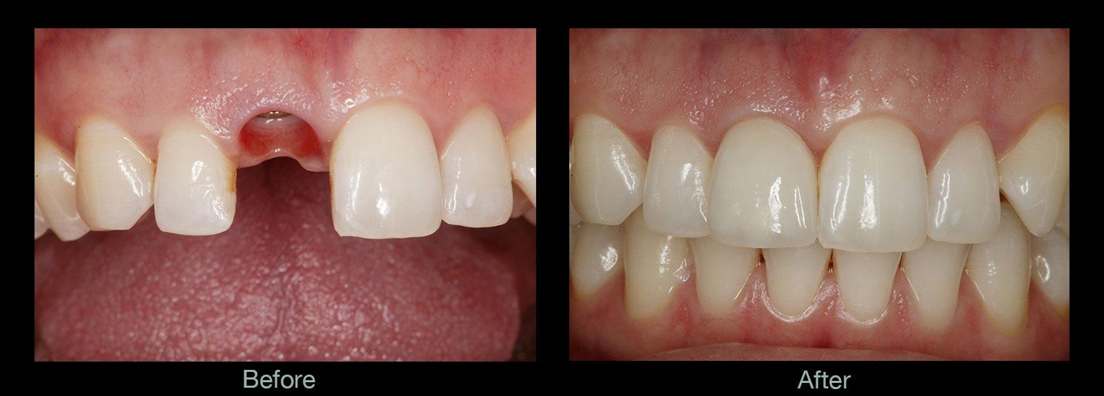 摆脱了传统种植牙切开翻起牙肉,缝合,拆线等步骤,将创伤降低到很小